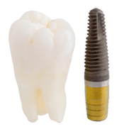 tooth_implant